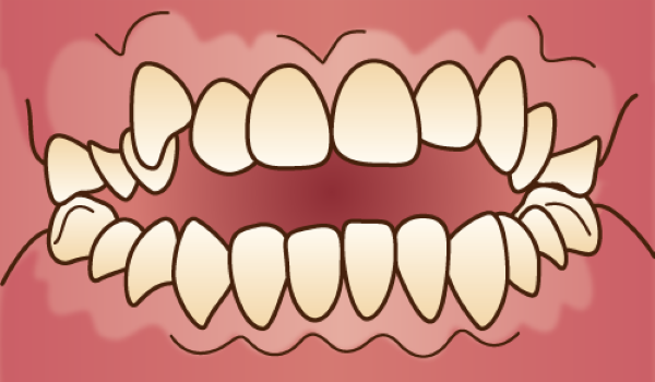 orthodontics032 - コピー