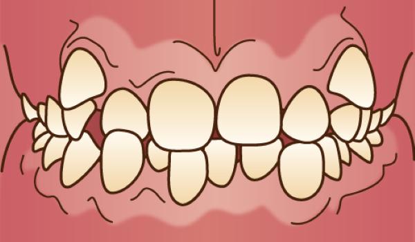 orthodontics033 - コピー