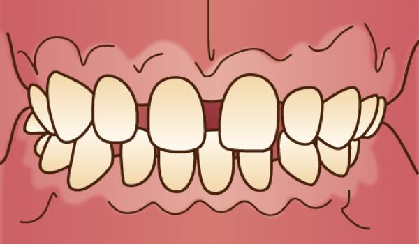 orthodontics034 - コピー