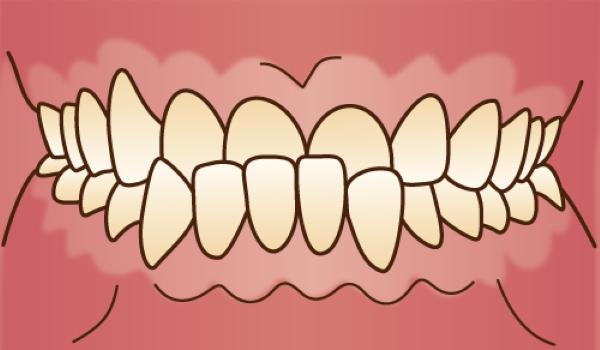 orthodontics035 - コピー