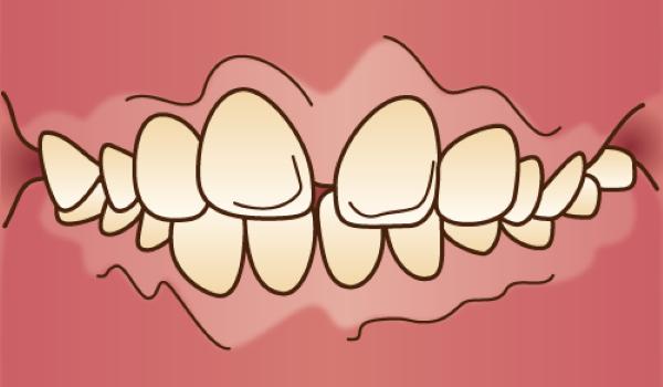 orthodontics036 - コピー - コピー