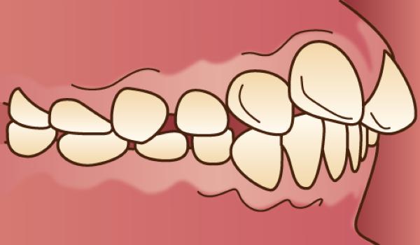orthodontics037 - コピー