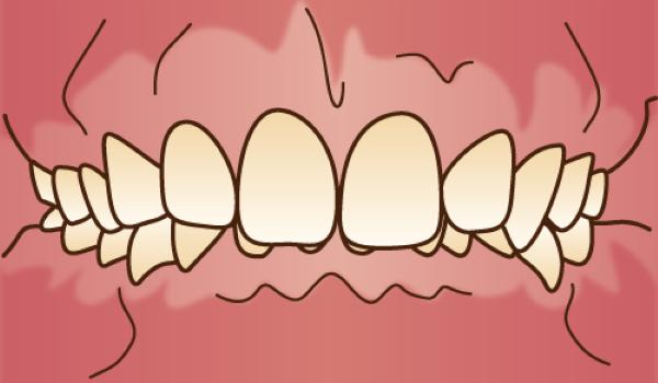 orthodontics038(1) - コピー
